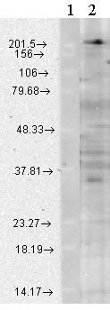 Western blot - Anti-CaV1.3 antibody [N38/8] (ab84811)