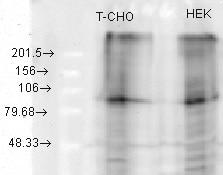 Western blot - Anti-KCNQ2 antibody [N26A/23] (ab84812)