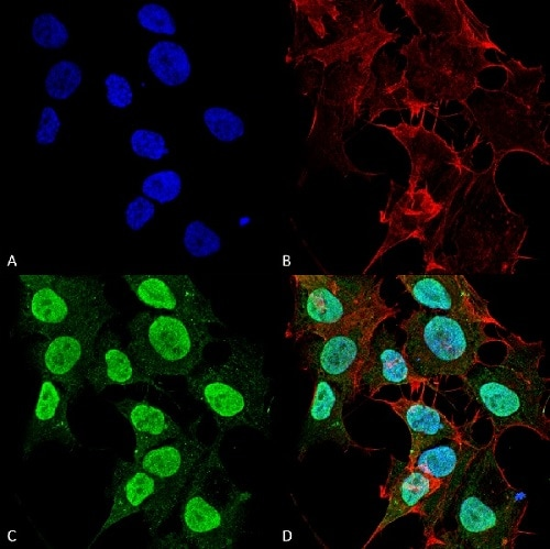 Immunocytochemistry/ Immunofluorescence - Anti-CACNA1C antibody [L57/46] (ab84814)