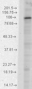 Western blot - Anti-HCN1 antibody [N70/28] (ab84816)