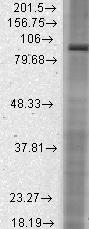 Western blot - Anti-HCN2 antibody [N71/37] (ab84817)