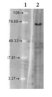 Western blot - Anti-KCNQ1 antibody [N37A/10] (ab84819)