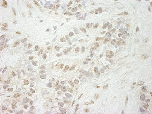 Immunohistochemistry (Formalin/PFA-fixed paraffin-embedded sections) - Anti-KDM5B / PLU1 / Jarid1B antibody (ab84883)