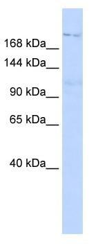 Western blot - Anti-PATJ antibody (ab84932)