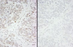 Immunohistochemistry (Formalin/PFA-fixed paraffin-embedded sections) - Anti-KMT6 / EZH2 (phospho S21) antibody (ab84989)