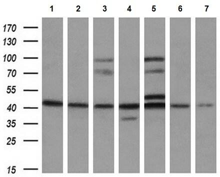 Western blot - Anti-SOX17 antibody [OTI3B10] (ab84990)