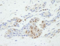 Immunohistochemistry (Formalin/PFA-fixed paraffin-embedded sections) - Anti-53BP2/ASPP2/BBP antibody (ab84996)
