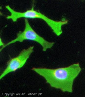 Immunocytochemistry/ Immunofluorescence - Anti-Monocarboxylic acid transporter 1 antibody (ab85021)