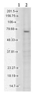 Western blot - Anti-TRPV3 antibody [N15/4] (ab85022)