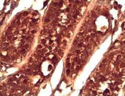 Immunohistochemistry (Formalin/PFA-fixed paraffin-embedded sections) - Anti-PIWIL2 antibody (ab85084)