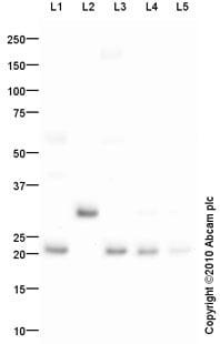 Western blot - Anti-MMP7 antibody (ab85144)
