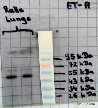Western blot - Anti-Endothelin A Receptor/ET-A antibody (ab85163)