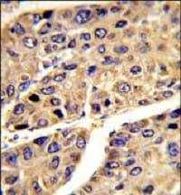 Immunohistochemistry (Formalin/PFA-fixed paraffin-embedded sections) - Anti-ALS antibody (ab85222)