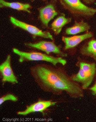 Immunocytochemistry/ Immunofluorescence - Anti-Lactate Dehydrogenase B/LDH-B antibody [60H11] (ab85319)