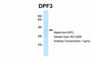 Western blot - Anti-DPF3 antibody (ab85360)