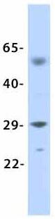 Western blot - Anti-KCNN2/SK2 antibody (ab85401)