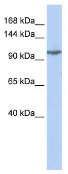 Western blot - Anti-GluK5 antibody (ab85441)