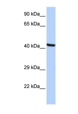 Western blot - Anti-Kaptin antibody (ab85449)