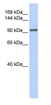 Western blot - Anti-KDM4C / GASC1 / JMJD2C antibody (ab85454)