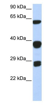 Western blot - Anti-SNRPB/SmB antibody (ab85534)