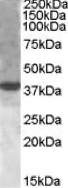 Western blot - Anti-XBP1 antibody (ab85546)