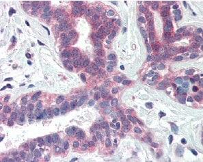 Immunohistochemistry (Formalin/PFA-fixed paraffin-embedded sections) - Anti-XBP1 antibody (ab85546)