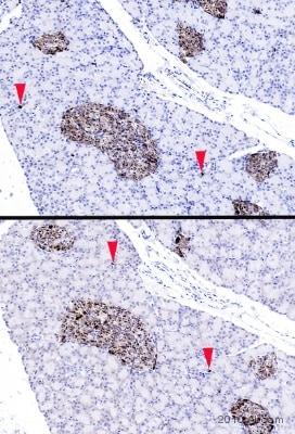 Immunohistochemistry (Formalin/PFA-fixed paraffin-embedded sections) - Anti-Chromogranin A antibody (ab85554)