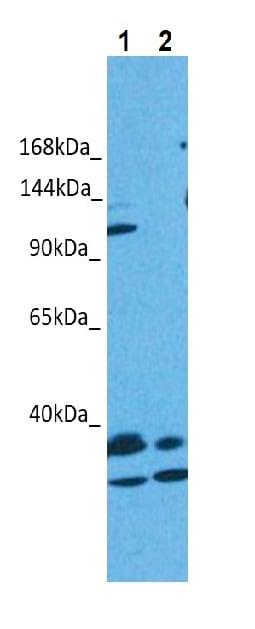 Western blot - Anti-OSMR antibody (ab85575)