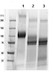 SDS-PAGE - Recombinant Human TrkC protein (Fc Chimera) (ab85599)
