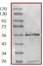 SDS-PAGE - Recombinant human ErbB 4 protein (ab85602)