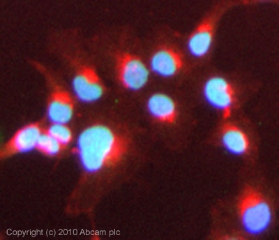 Immunocytochemistry/ Immunofluorescence - Anti-Bile Acid Receptor NR1H4 antibody (ab85606)