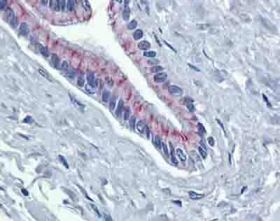 Immunohistochemistry (Formalin/PFA-fixed paraffin-embedded sections) - Anti-Desmoglein 2 antibody (ab85632)
