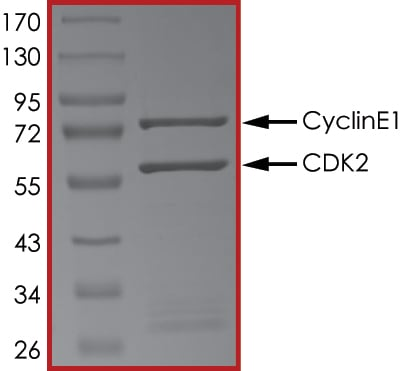 SDS-PAGE - Recombinant human CDK2 + CCNE1 protein (ab85639) (ab85639)