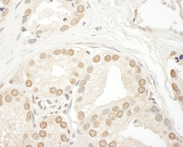Immunohistochemistry (Formalin/PFA-fixed paraffin-embedded sections) - Anti-SMG9 antibody (ab85659)