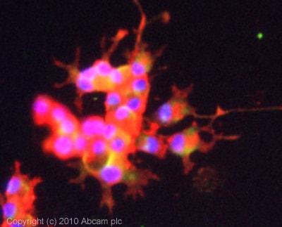 Immunocytochemistry/ Immunofluorescence - Anti-Spry-2 antibody (ab85670)
