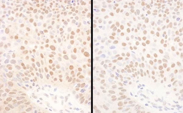 Immunohistochemistry (Formalin/PFA-fixed paraffin-embedded sections) - Anti-Bmi1 antibody (ab85688)