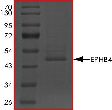 SDS-PAGE - Recombinant human Eph receptor B4/HTK protein (ab85713)