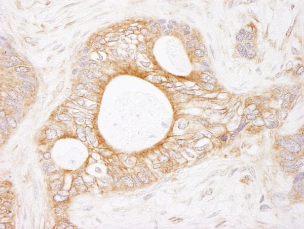 Immunohistochemistry (Formalin/PFA-fixed paraffin-embedded sections) - Anti-EEF2K antibody (ab85721)