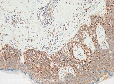 Immunohistochemistry (Formalin/PFA-fixed paraffin-embedded sections) - Anti-CTHRC1 antibody (ab85739)