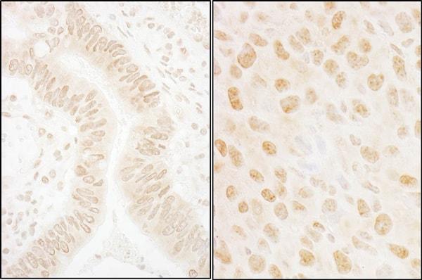 Immunohistochemistry (Formalin/PFA-fixed paraffin-embedded sections) - Anti-hSSB1 antibody (ab85752)