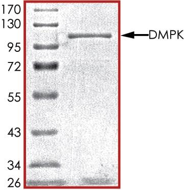 SDS-PAGE - Recombinant human Dystrophia myotonica protein kinase / DMPK (ab85755)