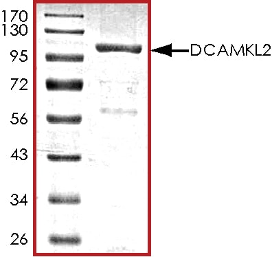SDS-PAGE - Recombinant human DCLK2 protein (ab85758)