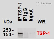 Immunoprecipitation - Anti-Thrombospondin 1 antibody (ab85762)