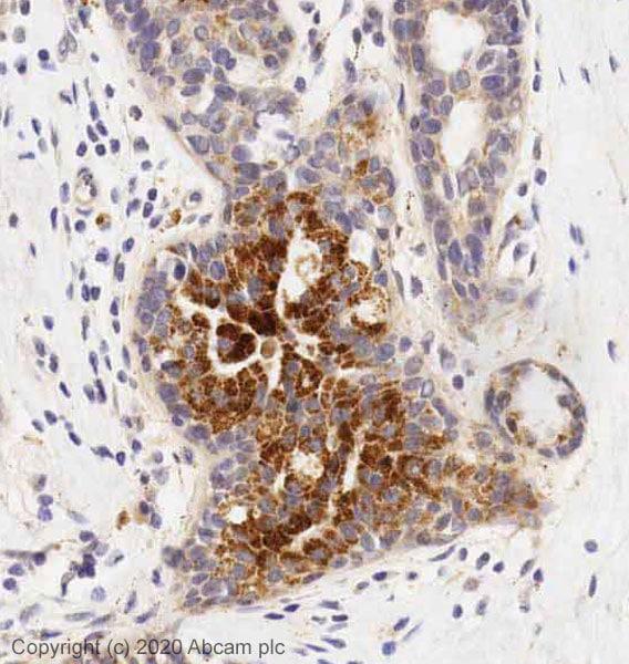 Immunohistochemistry (Formalin/PFA-fixed paraffin-embedded sections) - Anti-Thrombospondin 1 antibody (ab85762)