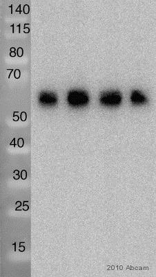 Western blot - Anti-CACNB4 antibody [N10/7] (ab85788)