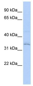 Western blot - Anti-RNF113A antibody (ab85797)