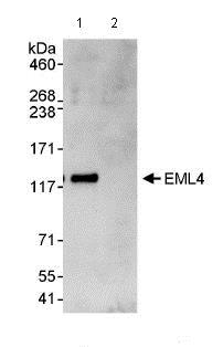 Immunoprecipitation - Anti-EML4 antibody (ab85834)