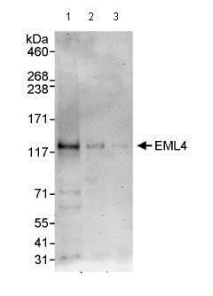 Western blot - Anti-EML4 antibody (ab85834)
