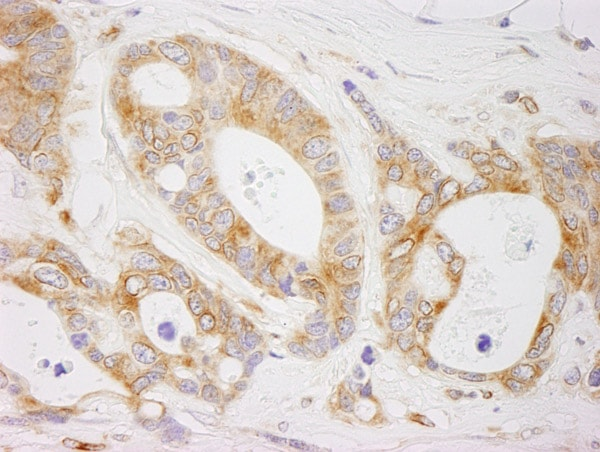 Immunohistochemistry (Formalin/PFA-fixed paraffin-embedded sections) - Anti-EML4 antibody (ab85834)