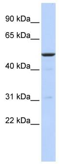 Western blot - Anti-BTBD3 antibody (ab85841)